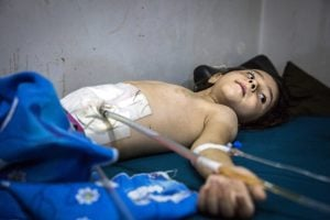 Child, five years old, recovers from surgery to his abdomen after being hit by shrapnel in airstrikes on Al Sukkari, east Aleppo. Photo/caption MSF (Karam Almasri)