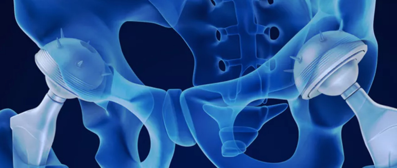 Why women are more likely to have dodgy hip implants or other medical devices